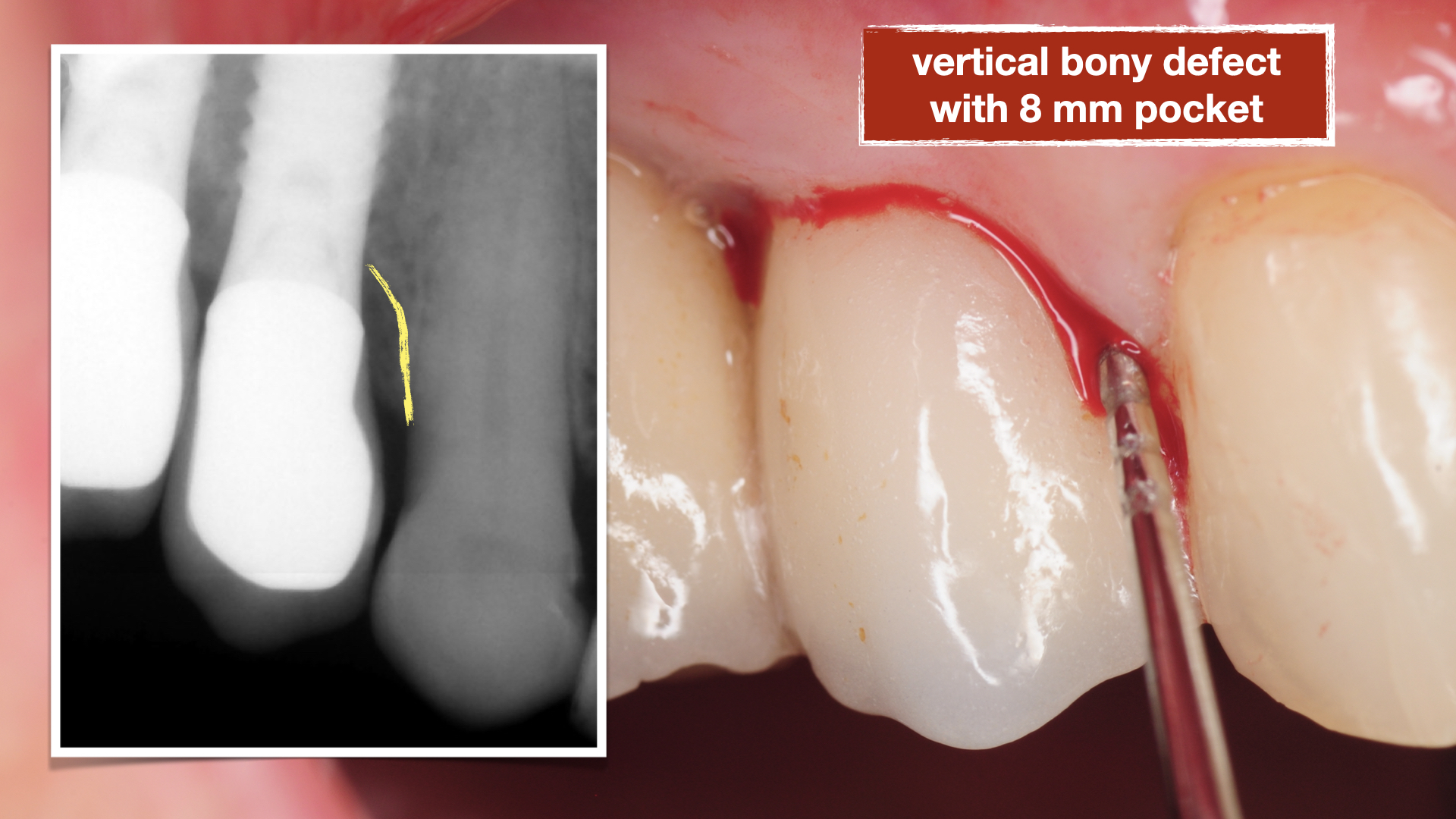chronic-pain-dental-implant-peri-implantitis-mucositis-airflow-prophylaxis-master-kazemi-oral-surgery-4