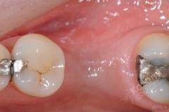 1.3. dental implant connective tissue graft kazemi oral surgery