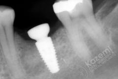 15. dental implant connective tissue graft kazemi oral surgery