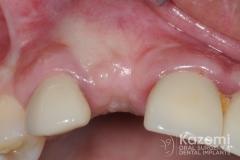 10dental implant complication kazemi oral surgery