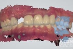 11dental implant complication kazemi oral surgery