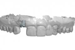 13dental implant complication kazemi oral surgery