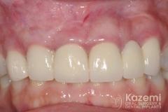 17dental implant complication kazemi oral surgery
