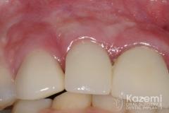 18dental implant complication kazemi oral surgery