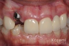 1dental implant complication kazemi oral surgery