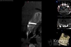 9dental implant complication kazemi oral surgery