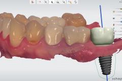 1.-Molar-dental-implant-digital-dentistry-kazemi-oral-surgery-bethesda-MD
