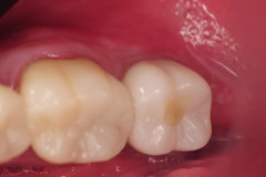 6.-Molar-dental-implant-digital-dentistry-kazemi-oral-surgery-bethesda-MD