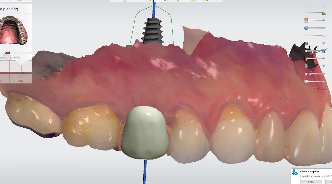 2.-maryland-bridge-to-dental-implant-digital-plan-kazemi-oral-surgery-gray-giannini