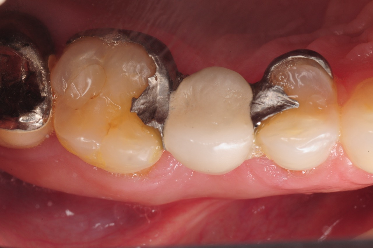 1.-maryland-bridge-to-dental-implant-kazemi-oral-surgery-gray-giannini
