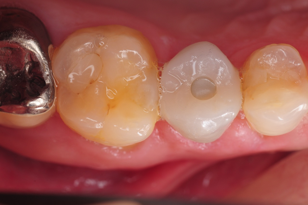 5.-maryland-bridge-to-dental-implant-restoration-kazemi-oral-surgery-gray-giannini