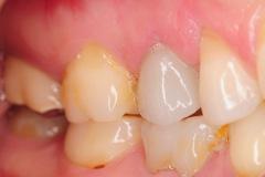 4.-maryland-bridge-to-dental-implant-crown-kazemi-oral-surgery-gray-giannini