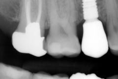 6.-maryland-bridge-to-dental-implant-final-xray-kazemi-oral-surgery-gray-giannini