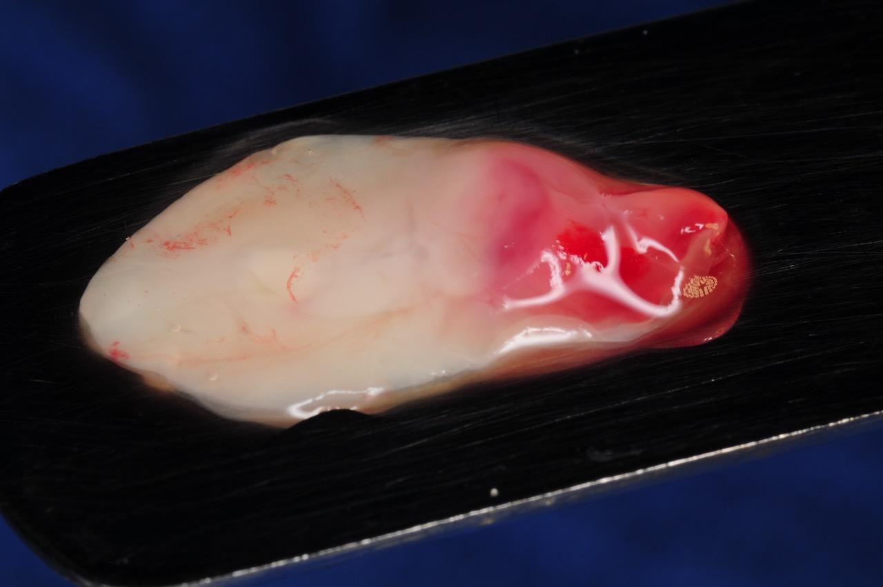 14.-dental-implant-gum-recession-peri-implantitis-infection-poorly-placed-kazemi-oral-surgery-bethesda-platelet-rich-fibrin-PRF