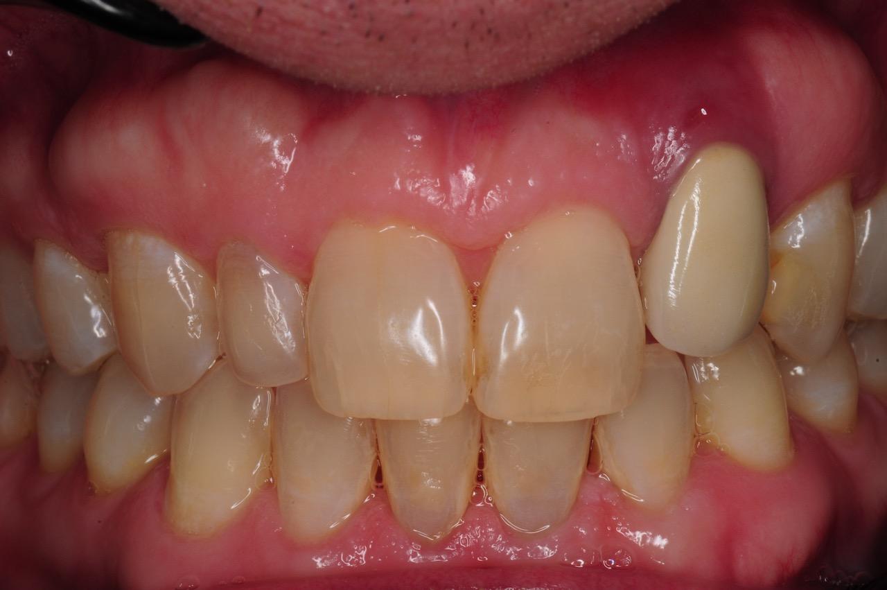 2.-dental-implant-gum-recession-peri-implantitis-infection-poorly-placed-kazemi-oral-surgery-bethesda