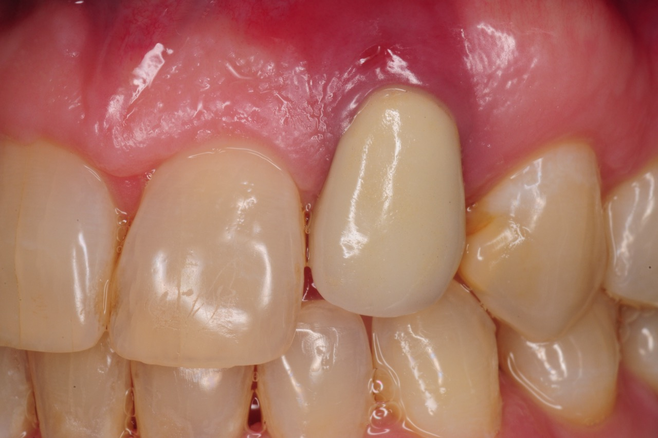 3.-dental-implant-gum-recession-peri-implantitis-infection-poorly-placed-kazemi-oral-surgery-bethesda