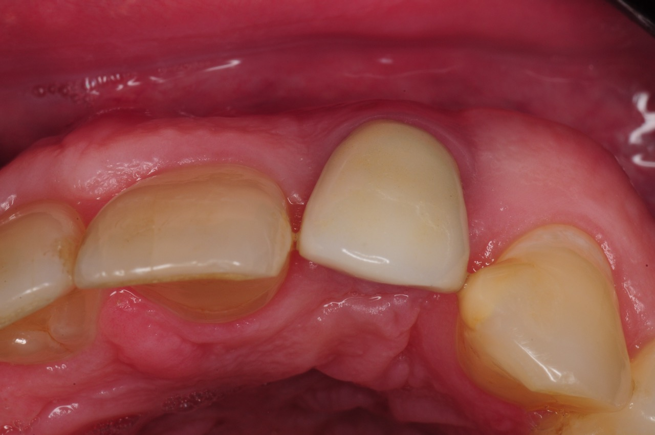 4.-dental-implant-gum-recession-peri-implantitis-infection-poorly-placed-kazemi-oral-surgery-bethesda