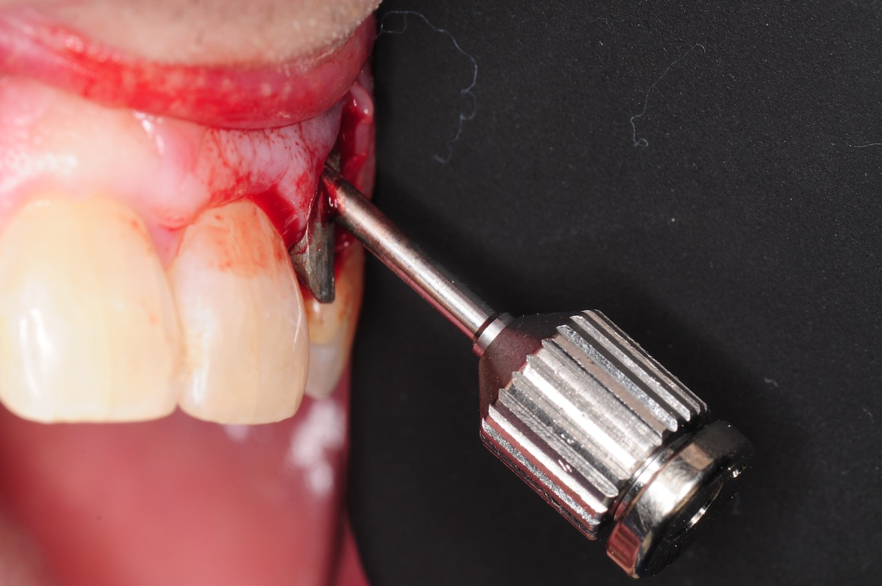 7.-dental-implant-gum-recession-peri-implantitis-infection-poorly-placed-kazemi-oral-surgery-bethesda