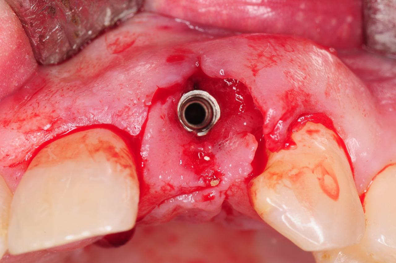 8.-dental-implant-gum-recession-peri-implantitis-infection-poorly-placed-kazemi-oral-surgery-bethesda