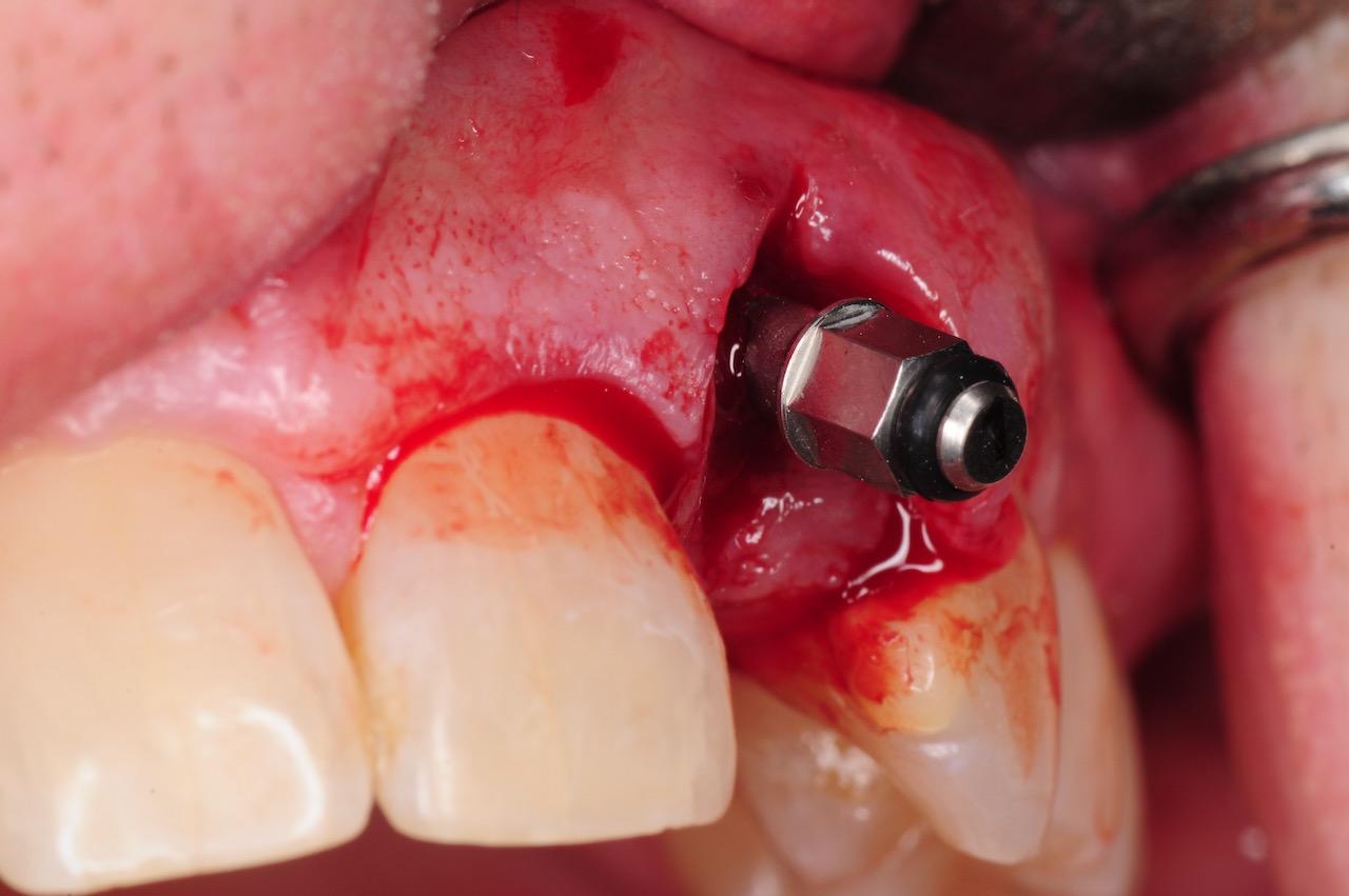 9.-dental-implant-gum-recession-peri-implantitis-infection-poorly-placed-kazemi-oral-surgery-bethesda