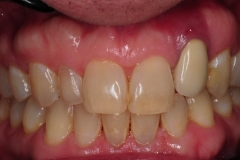 2.-dental-implant-gum-recession-peri-implantitis-infection-poorly-placed-kazemi-oral-surgery-bethesda