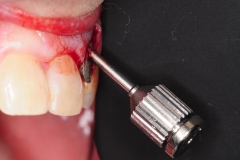 7.-dental-implant-gum-recession-peri-implantitis-infection-poorly-placed-kazemi-oral-surgery-bethesda