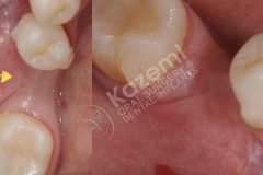 dental implant with bone graft kazemi oral surgery.001
