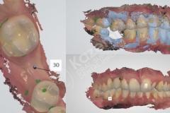 dental implant with bone graft kazemi oral surgery.003