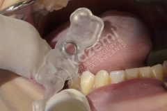 dental implant with bone graft kazemi oral surgery.006
