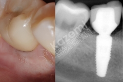 dental implant with bone graft kazemi oral surgery.010