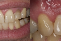 1.-missing-lateral-incisor-gum-recession-kazemi-oral-surgery