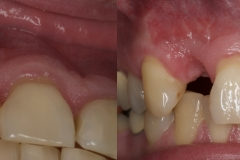 2.-missing-lateral-incisor-gum-recession-kazemi-oral-surgery