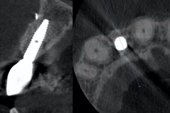 3.-dental-implant-lateral-incisor-guided-kazemi-oral-surgery