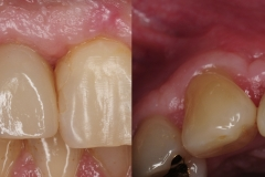 4.-dental-implant-crown-gum-graft-for-recession-kazemi-oral-surgery
