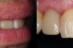 5.-smile-implant-crown-kazemi-oral-surgery