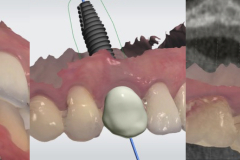 2.-dental-implant-canine-partial-extraction-therapy-socket-digital-work-up-shield-kazemi-oral-surgery