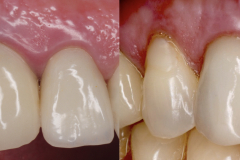 3.-dental-implant-canine-partial-extraction-therapy-socket-shield-kazemi-oral-surgery