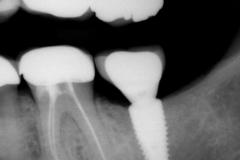 2. Peri-implantitis cement pain bleeding dental implant kazemi oral surgery