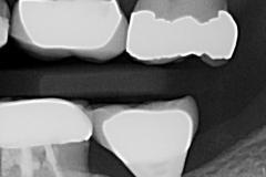 3. Peri-implantitis cement pain bleeding dental implant kazemi oral surgery