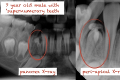 2.-super-numarary-teeth-odontoma-extraction-kazemi-oral-surgery