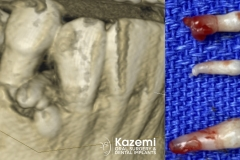 8.-super-numarary-teeth-odontoma-extraction-kazemi-oral-surgery