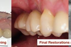 Sinus-lift-bone-graft-Ridge-bone-graft-vertical-deficiency-for-dental-implants-kazemi-oral-surgery-bethesda-MD.003