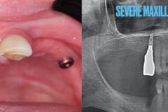 zygomatic-pterygoid-dental-implants-severe-bone-loss-kazemi-oral-surgery-2