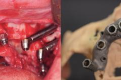 zygomatic-pterygoid-dental-implants-severe-bone-loss-kazemi-oral-surgery-5