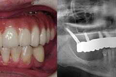 zygomatic-pterygoid-dental-implants-severe-bone-loss-kazemi-oral-surgery-7