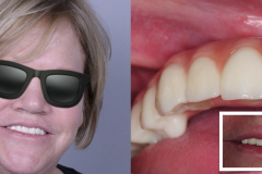 zygomatic-pterygoid-dental-implants-severe-bone-loss-kazemi-oral-surgery-8